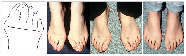 靭帯性外反母趾