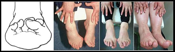 病変性外反母趾